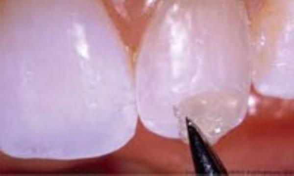 دندان های نقره ای